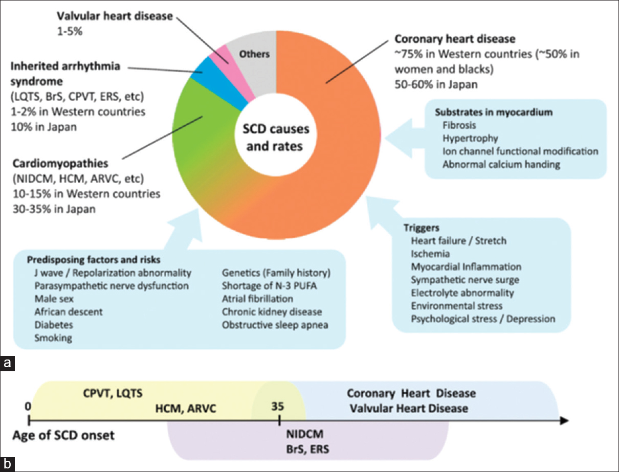 Risk Stratification of Sudden Cardiac Death: A Multi-racial