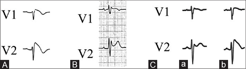 Figure 1: Representative Brugada-type ECGs. (A) Type 1 ECG in leads V1 and V2. (B) Type 2 ECG in lead V2. (C) Type 2 ECG in lead V2 before pilsicainide administration (a) and type 1 ECG in lead V2 after pilsicainide administration (b). ECG=Electrocardiogram