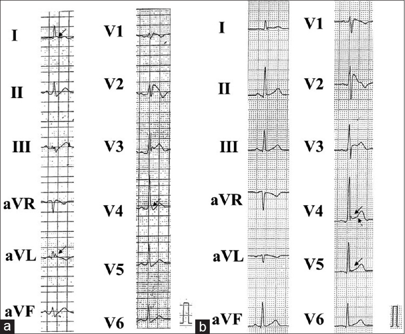 Figure 2: Inferolateral ER in patients with Brugada syndrome. (a) Horizontal ST segment in the leads deploying notching type of J wave (J waves are marked with solid arrows). Dotted arrow indicates slurring type of J wave. (b) Rapidly ascending (dotted arrow) ST segment in the leads deploying notching type of J wave (solid arrows). ER=Early repolarization
