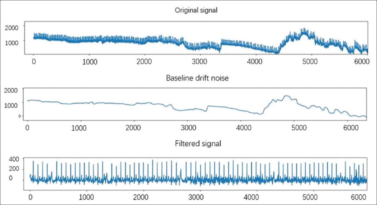 Analysis of 12-lead electrocardiogram signal based on deep