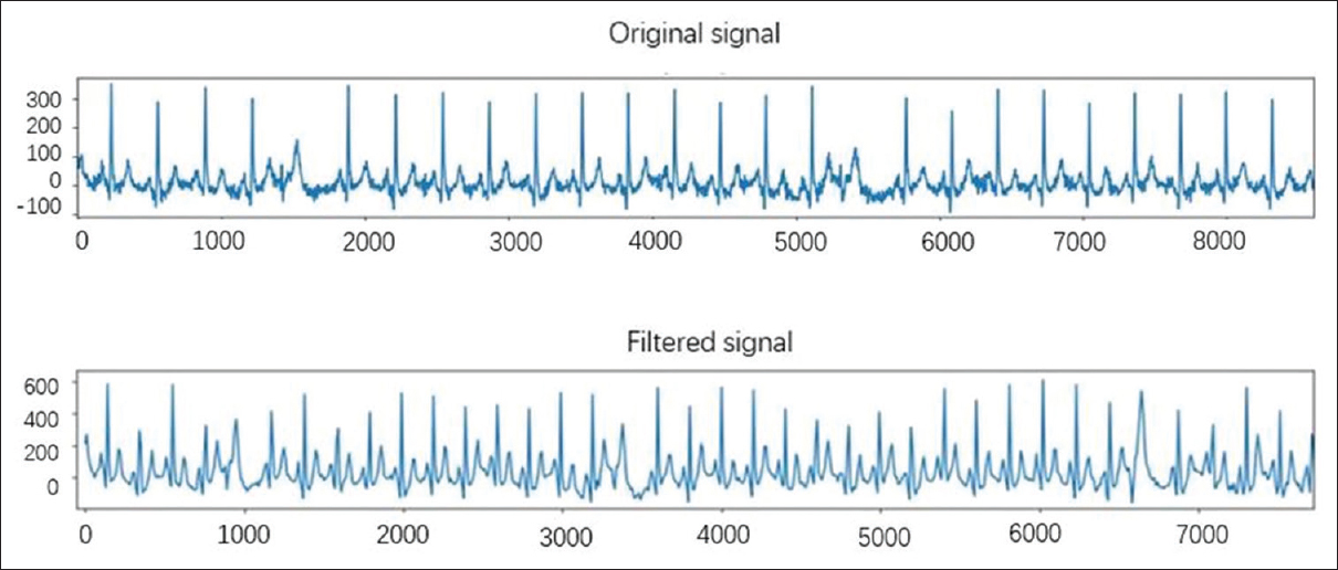 Analysis of 12-lead electrocardiogram signal based on deep learning