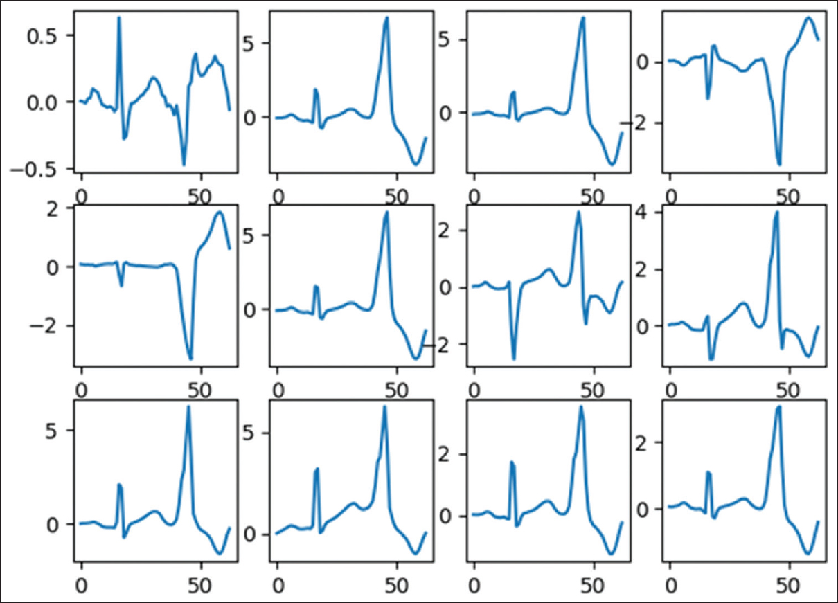 Analysis of 12-lead electrocardiogram signal based on deep