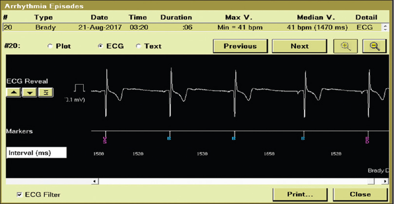 Figure 3: Syncope-related arrhythmia: sick sinus syndrome was recorded in nine patients