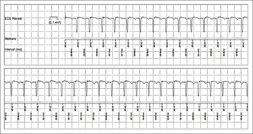 Figure 4: Syncope-related arrhythmia: paroxysmal supraventricular tachycardia was recorded in two patients